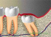 Вертикальное подгружение зуба мудрости